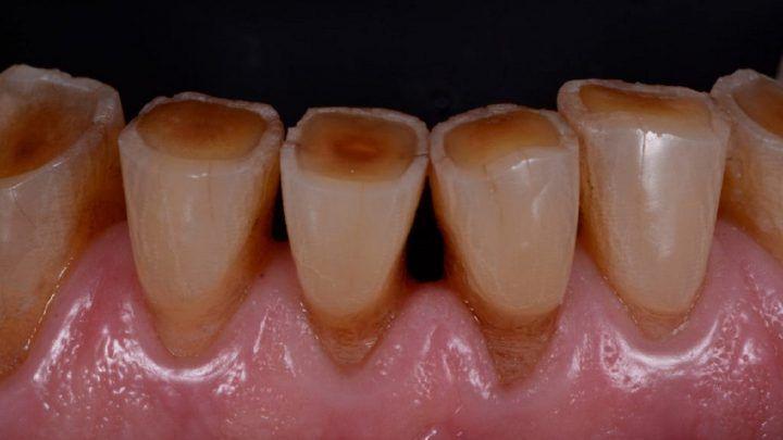 Door tandenknarsen of -klemmen kan je gebit ernstige slijtage oplopen!